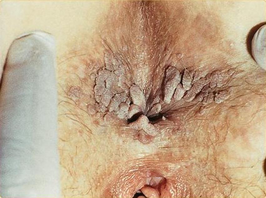 Genital Warts Management