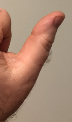 Larry Sanger's left thumb wiki, Larry Sanger's left thumb history, Larry Sanger's left thumb news